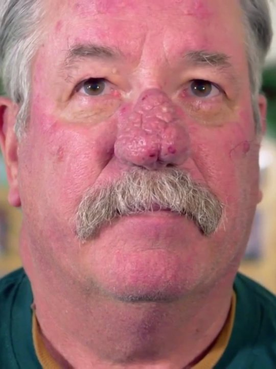 Dr Pimple Popper Buy Rent Or Watch On Fandangonow